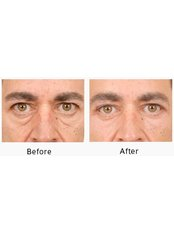 Blepharoplasty Laser  - Smart Lipo Clinic