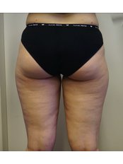 Cellulite Treatment - Szegi Medical Center