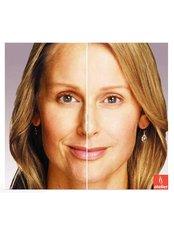 Dermal Fillers - Atelier Cosmetic Plastic and Laser Clinic-N Dehli