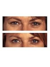 Treatment for Lines and Wrinkles - Les CosMedics Laser Skin & Hair Clinic