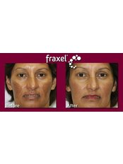 Fraxel™ - Atelier Cosmetic Plastic and Laser Clinic-S Delhi
