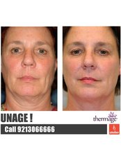 Thermage™ - Atelier Cosmetic Plastic and Laser Clinic-S Delhi