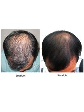 Treatment forMale Pattern Baldness - Victory BLC Therapy - Bali