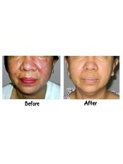 Acne Scars Treatment - Victory BLC Therapy - Bali