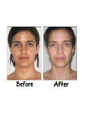 Facial Rejuvenation - Victory BLC Therapy - Bali