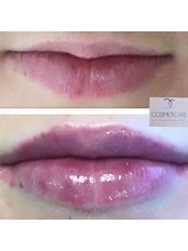 Lip Enhancement - Anne Hegarty, Cosmeticare