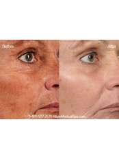 Fractional CO2 Laser Treatment - Ailesbury Clinic