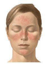 Rosacea Treatment - Ailesbury Clinic