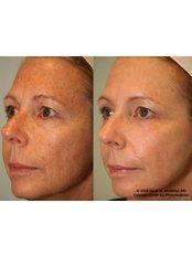 Laser Skin Tightening - Ailesbury Clinic