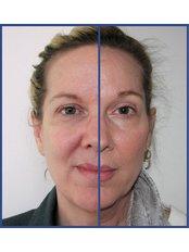 Skin Diagnostics - Ailesbury Clinic