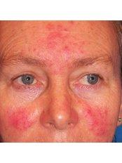 Facial Thread Veins Treatment - Ailesbury Clinic