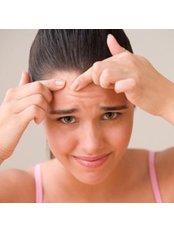 Acne Treatment - Ailesbury Clinic