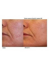 Laser Wrinkle Reduction - Akina Laser and Beauty Clinic