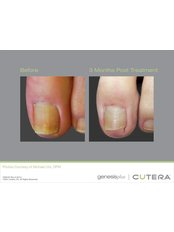 Toenail Fungus Treatment - Akina Laser and Beauty Clinic