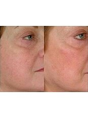 Laser and Pulsed Light Vein Treatment - Akina Laser and Beauty Clinic