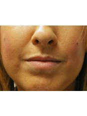 Restylane™ / Perlane™ Filler - Cosmedics