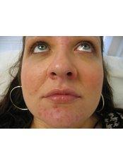 Acne Treatment - Cosmedics