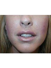 Lip Augmentation - Cosmedics