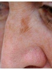 IPL  Poikiloderma Treatment  - Cosmetic Doctor Slievemore Clinic