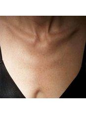 Decolletage Rejuvenation - Cosmetic Doctor Slievemore Clinic