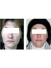 ZO 3 STEP PEEL  - Cosmetic Doctor Slievemore Clinic