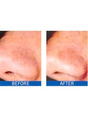 Microdermabrasion - Cosmetic Doctor Slievemore Clinic