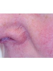 Facial Thread Veins Treatment - Nasal area - Cosmetic Doctor Slievemore Clinic