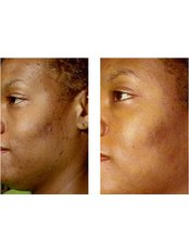 ZO STIMULATOR FACIAL PACKAGE OF 4 - Cosmetic Doctor Slievemore Clinic