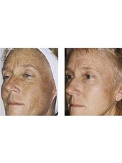 IPL Skin Rejuvenation - Cosmetic Doctor Slievemore Clinic
