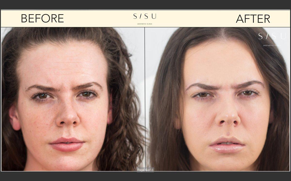 SISU Aesthetic Clinic - Dublin 2 • Read 15 Reviews