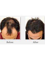 Hair Loss Treatment - Next Door Spa