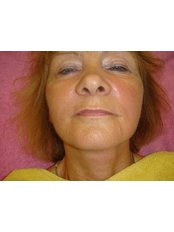 Lip Augmentation - His &Hers Micropigmentation Clinic