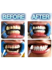 Teeth Whitening - Laserderm Clinic - Claregalway