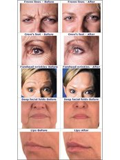 Treatment for Lines and Wrinkles - Laserderm Clinic - Claregalway