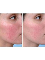 Acne And Acne  Rosacea Treatments - The Skin Specialist