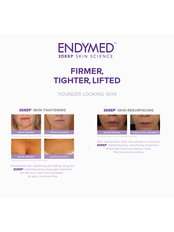 Radiofrequency Skin Tightening - Complete Laser Care Limerick