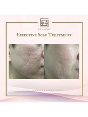 Acne Scars Treatment - EE Clinic