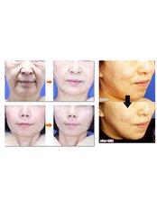 Facelift - SkinArt Group