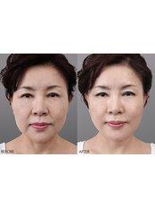 Face lift - Regen Clinic
