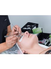 Eyelash Extensions - CHIC Med-Aesthetic Clinics