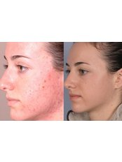 Acne Treatment - CHIC Med-Aesthetic Clinics
