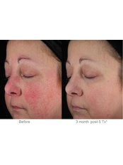Rosacea Treatment - CHIC Med-Aesthetic Clinics