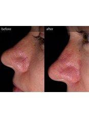 Facial Thread Veins Treatment - CHIC Med-Aesthetic Clinics