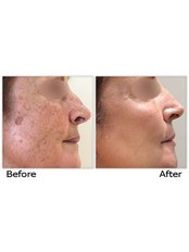 Age Spots Removal - CHIC Med-Aesthetic Clinics