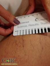 Spider Veins Treatment - CHIC Med-Aesthetic Clinics