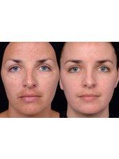 Pigmentation Treatment - CHIC Med-Aesthetic Clinics