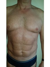 Vaser Assisted Liposuction - St. Mary's Clinic