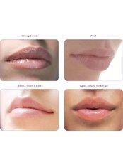 Dermal Fillers - Vital Face and Vein