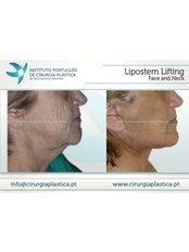 Neck Lift - Instituto Portuges de Cirurgia Plastica at Clinica Particula