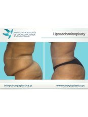 Lipoabdominoplasty - Instituto Portuges de Cirurgia Plastica at Clinica Particula